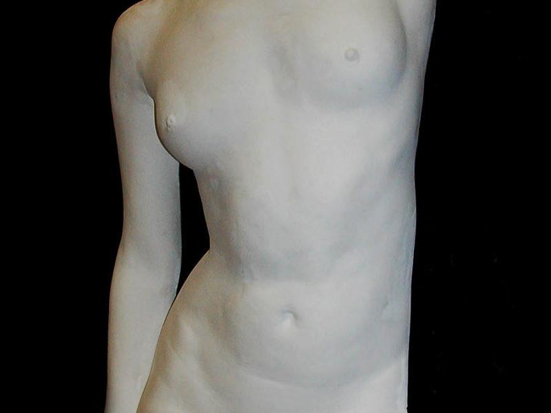 Plaster cast front torso